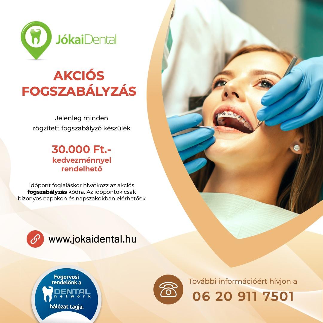 Jókai Dental fogorvos Budapesten - AKCIÓS Fogszabályzás