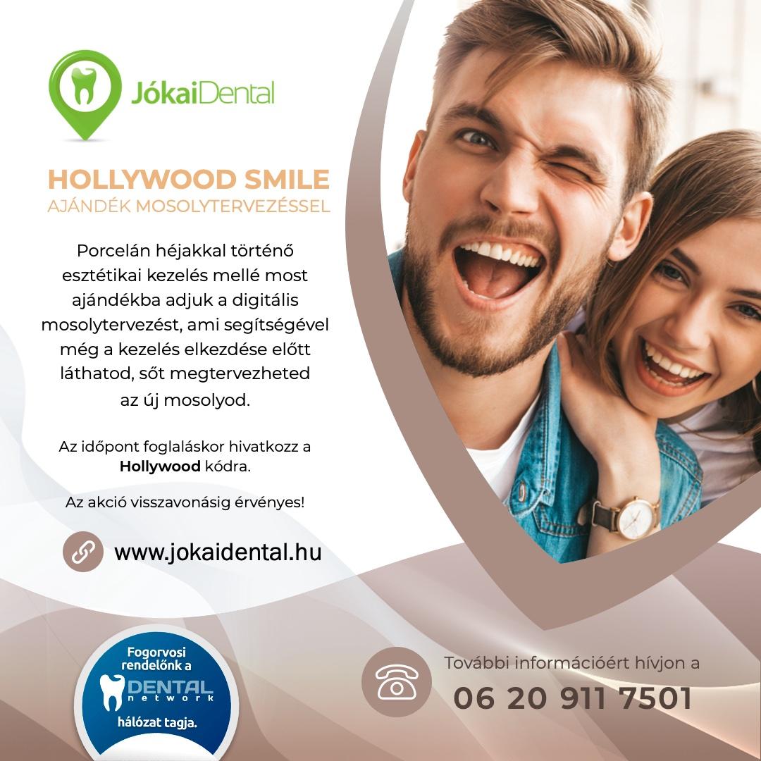 Jókai Dental fogorvos Budapesten - Hollywood smile akció