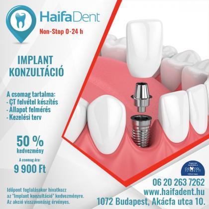 Implant Konzultáció + CT