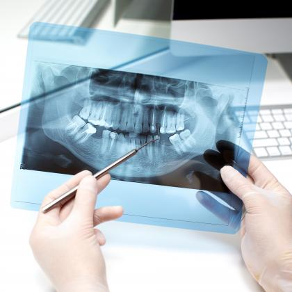 Panoráma röntgen fontossága a fogászatban