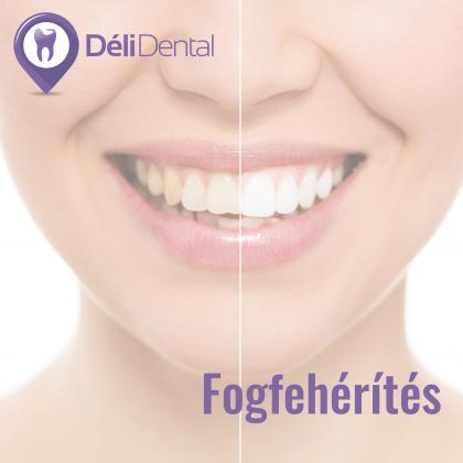 Fogfehérítés - vonzó fehér fogak