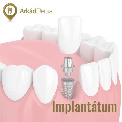 Implantológia - fogpótlás
