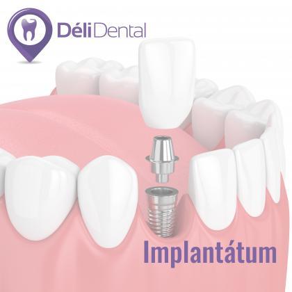 Implantológia - hiányzó fog pótlása