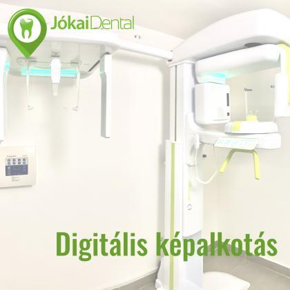 Digitális képalkotás - CT - Haifa Dent és Dentium Implant Centerben érhető el