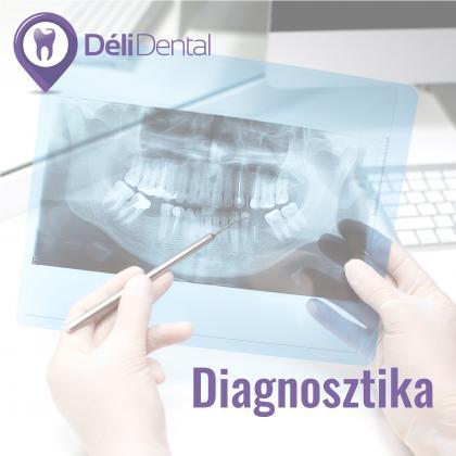 Diagnosztika - a fogászati szűrés fontossága