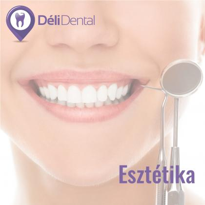 Cosmetic Dental Treatments!